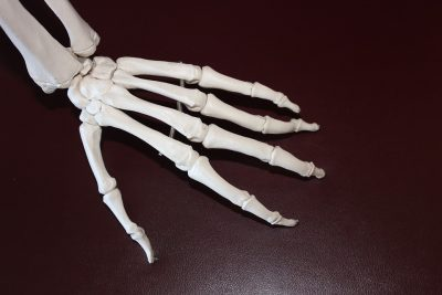 Read more about the article Chiropractic Care May Keep Osteoarthritis in Check